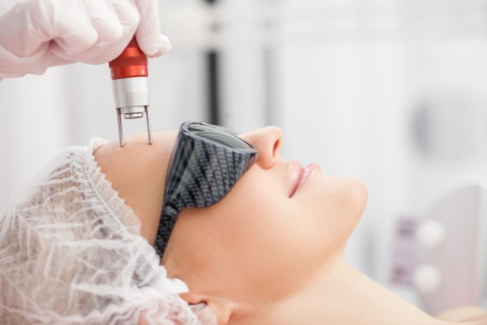 Accomplish a More Youthful Look With Fraxel Laser Treatments