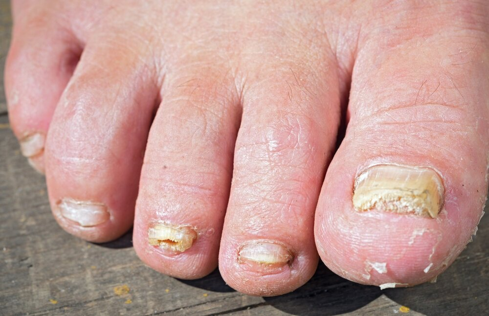 Upsides and downsides of Different Toenail Fungus Treatments