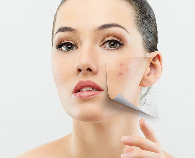Think About Various Acne Treatment Methods