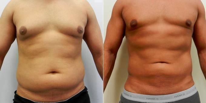 Indications Of A Good VASER Lipo Clinic